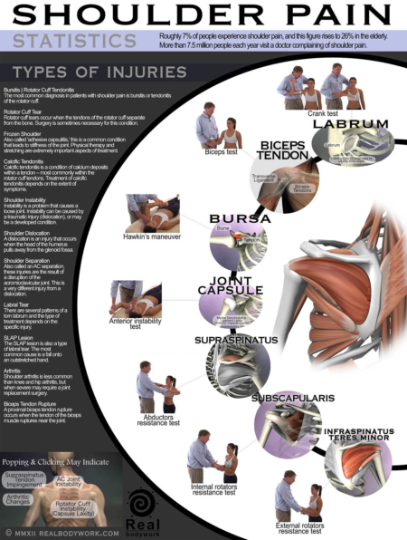 Poster showing various types of shoulder pain