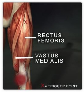 Rectus femoris and vastus medialis