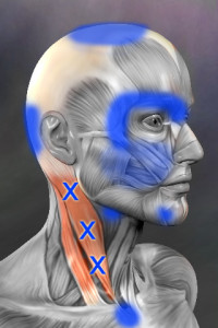 Sternocleidomastoid trigger points