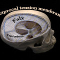 The reciprocal tension membrane