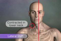 Neck lateral shift assessment