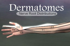dermatomes in the arm