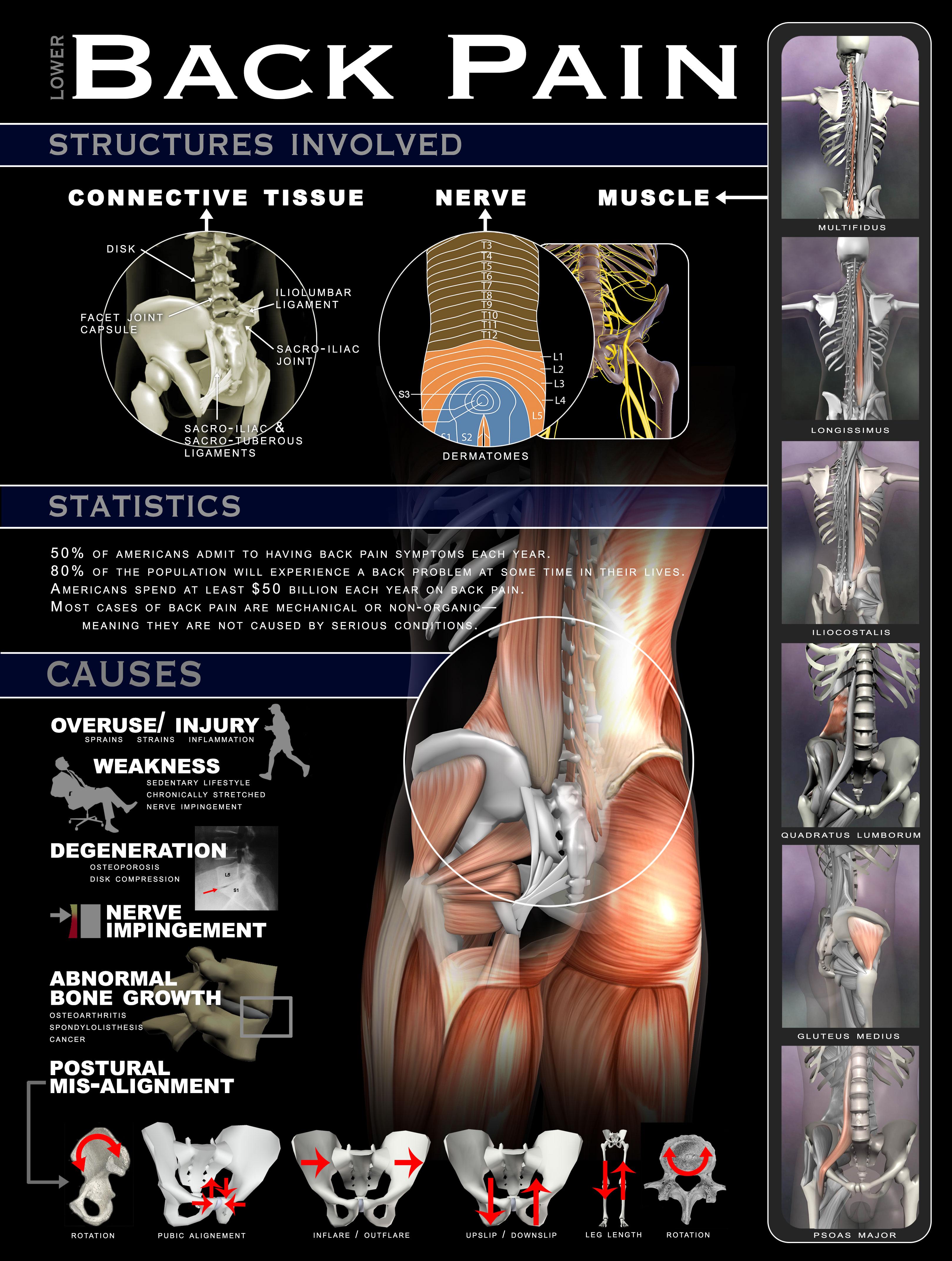 Back Pain Poster 18x24 - Real Bodywork