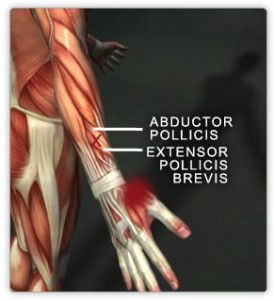 Abductor policies and extensor policies bravis