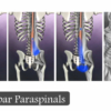 The paraspinal muscles