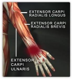 Wrist extensor muscles