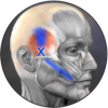 Temporalis trigger points