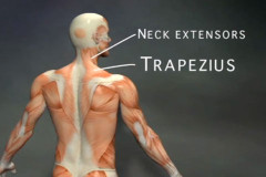 the neck extensor muscles and trapezius