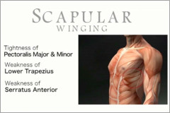 Scapular winging assessment